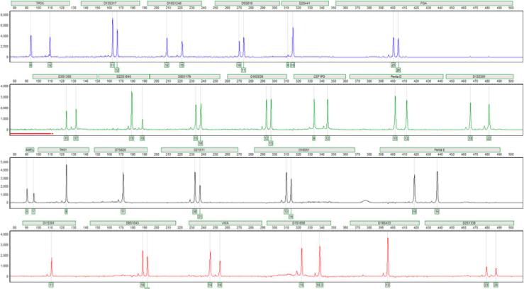 STR DNA profiling Electropherogram